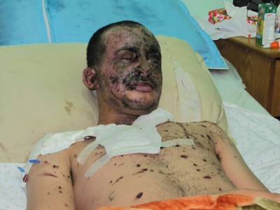 Moath Nofal Abo El-Eash, 20 - Moath has injuries from burns all over his body, particularly on his face and splinters in several parts of his body.