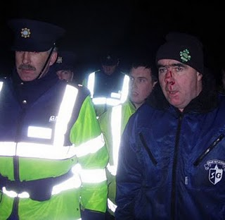 Pat O'Donnell after Garda Assault
