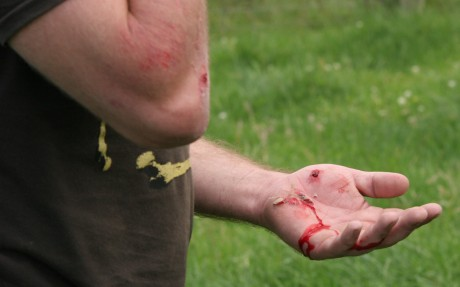 These injuries were caused when James Gill kicked this protestor causing him to fall against barbed wire