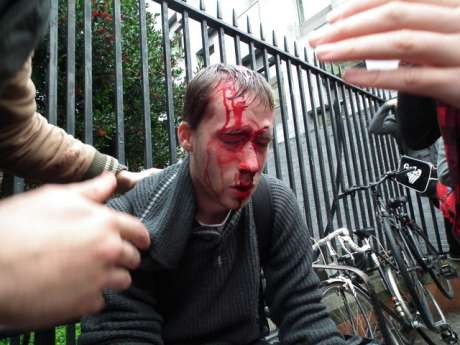 Victim of Garda Assault at student anti-cuts demo