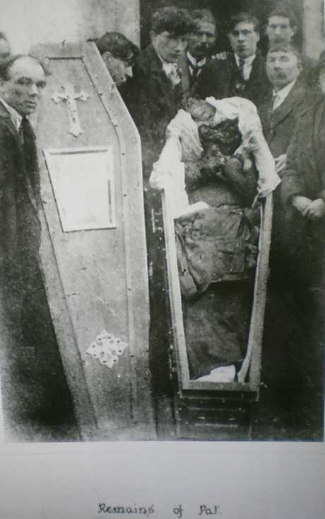 The body of Patrick Loughnane after torture by members of the RIC